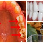 Las clínicas dentales nos ocultan esta receta para eliminar las caries