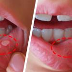 7 remedios caseros para curar las llagas en la boca