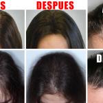 Recetas naturales para tratar y prevenir la calvicie y la alopecia