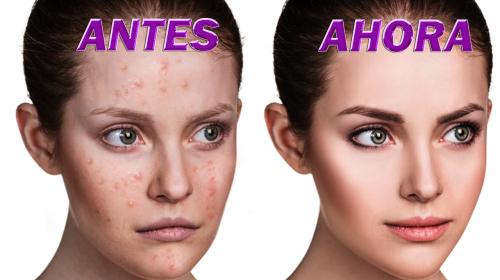 Elimine el acné para siempre con el aceite de coco