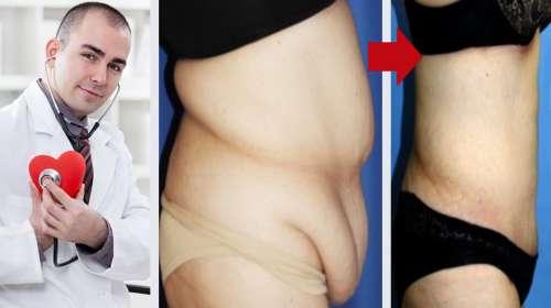 Famoso cardiólogo nos enseña como bajar 10kg en una semana