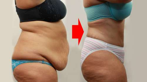 Dieta para perder 5 kilos en 4 dias
