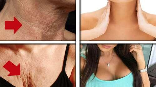 Las arrugas del cuello y pecho se eliminan en 20 dias