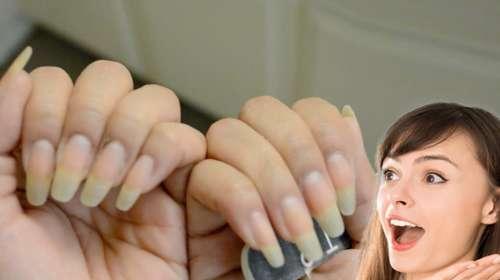 Ella esta asombrada pues sus uñas crecen sin parar con una receta natural