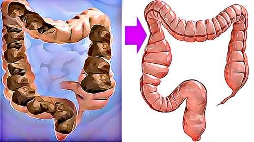 Como eliminar la CACA atorada en el colon en UN DÍA