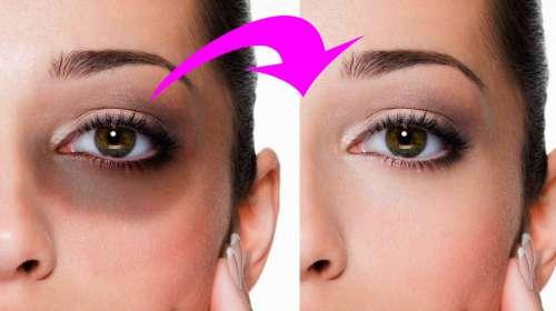 Elimina las ojeras en 4 minutos