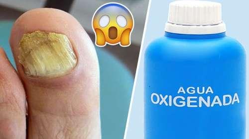 Nunca imaginé que el agua oxigenada podría hacer esto 😱