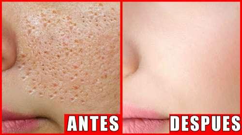 Desaparece Los Poros Abiertos y Cicatrices del Acné