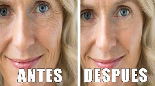 El Mejor Anti Arrugas: Las Elimina En Un Mes