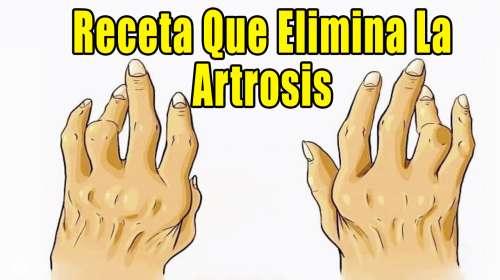 Solo necesitas 4 Ingredientes para Preparar la Receta que elimina la Artritis