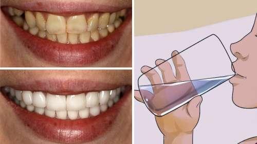 La manera más rápida de blanquear los dientes ¡NADIE QUIERE QUE LO SEPAS!