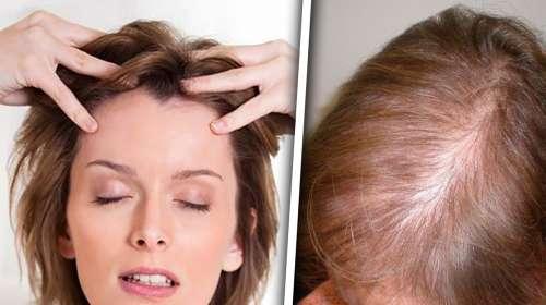 Masajea tu cuero cabelludo con esto y dile adiós a la perdida de cabello