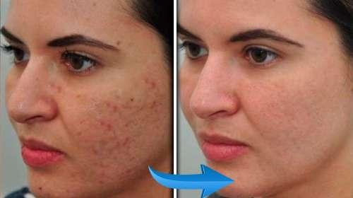 Todas las cicatrices producidas por el acné desaparecen con esta mascarilla