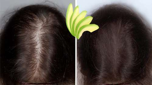 Solo frota PALTA en tu cabello para frenar la caída de cabello