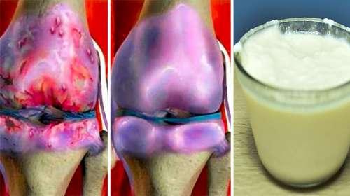 Los Médicos no pueden Creer como esta Receta reconstruye y sana los Huesos y Articulaciones