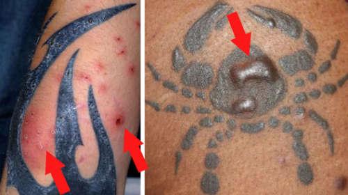 Estos son los riesgos de los Tatuajes para la Salud