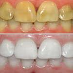 Aplicatelo por 1 Minuto y Blanquearás tus dientes