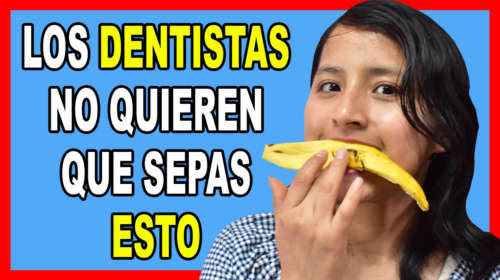 Frota 1 Cáscara de Plátano en tus dientes y mira lo que Sucede