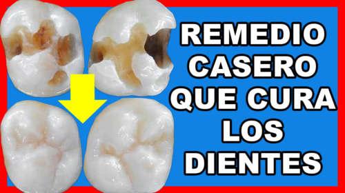 Míralo Antes de que lo Eliminen! Los Dentistas NO quieren que Sepas ESTO!